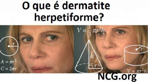 O que é doença celíaca dermatite herpetiforme ?